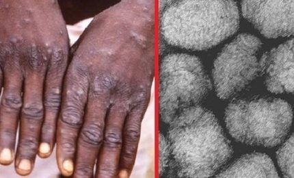 Fusaro: il vaiolo più grave del Coronavirus, mai curato con il controllo sociale repressivo